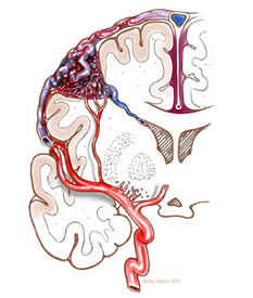 Illustration of Arteriovenous Malformation (AVM)