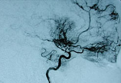 Formal angiography of the cerebral vessels is the most accurate.