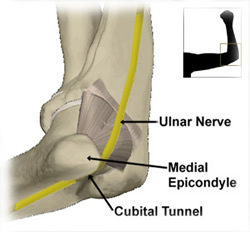 cubital tunnel syndrome diagram