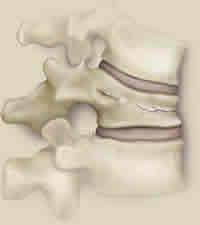 Vertebral Fracture