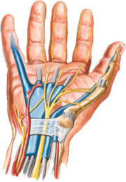 Artistic depiction of Carpal Tunnel Syndrome