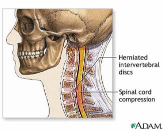 cervical herniated disc » lillian s. wells department of, Human Body