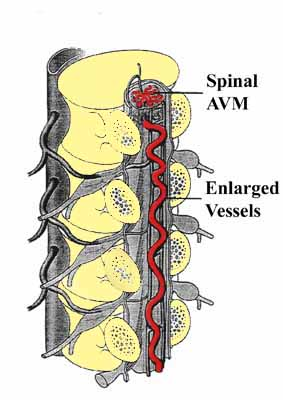 Artists rendering of Spinal AVM