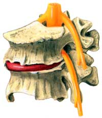 artists rendering of Spinal Stenosis