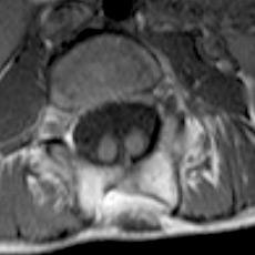 Image: Diastematomyelia (split cord)
